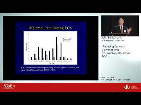 Reducing Cesarean Deliveries with Neuraxial Anesthesia for ECV - John Sullivan, M.D