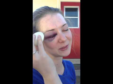 How to fix your black eye with an egg
