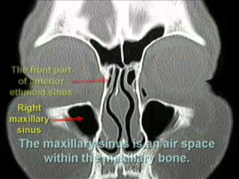 How To Read CT Sinus Scans Like An Expert