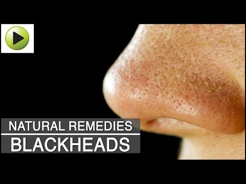 Skin Care - Blackheads - Natural Ayurvedic Home Remedies