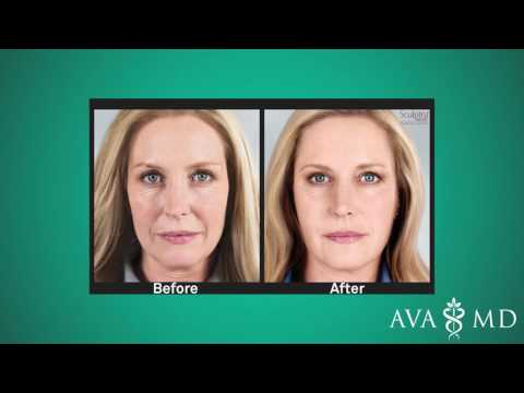 Are Sculptra Injections Right for You?