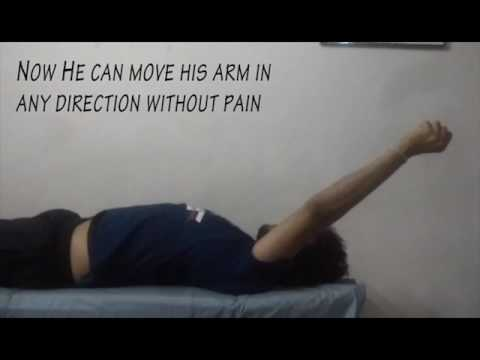 Best Physiotherapy Treatment for post Fracture Shoulder Pain