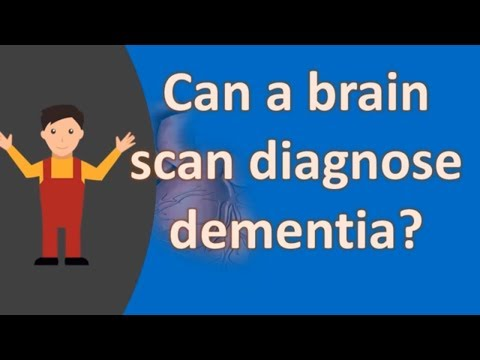 Can a brain scan diagnose dementia ?  | Health FAQS for Better Life
