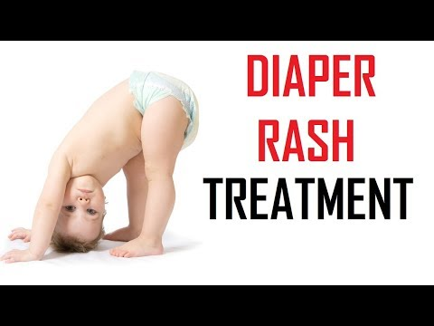 8 Remedies For Diaper Rash Treatment Naturally At Home