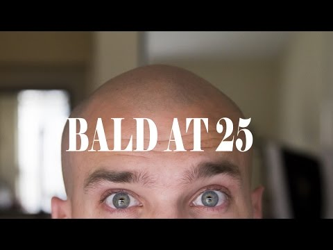 BALD AT 25 YEARS OLD!