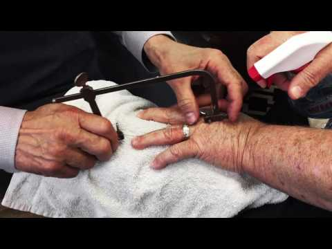 Wedding Ring Removal