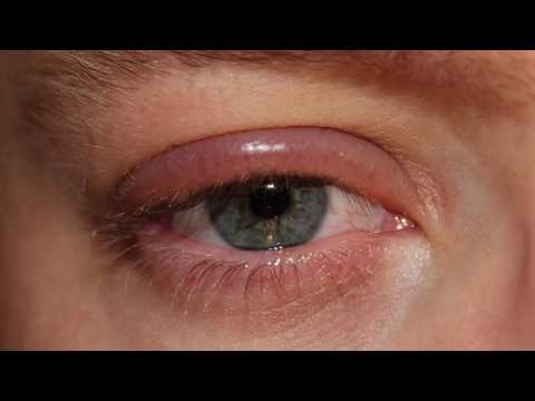 HOME REMEDIES TO REDUCE EYE SWELLING FROM CRYING