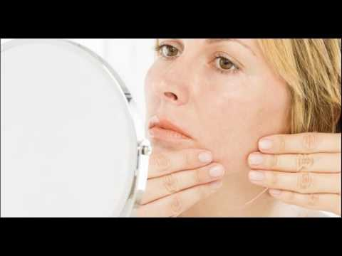 Causes Of Chin Hair And Acne in Women And Men