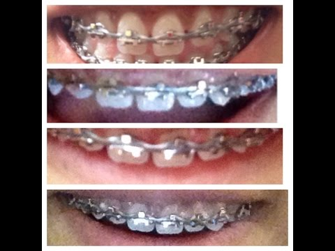 Brace Update } gum disease update, changed brackets and prediction for removal! :)