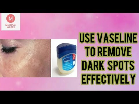 In 5 DAYS- Remove DARK SPOTS with VASELINE   Apply Vaseline on your Dark Spots & See the Magic