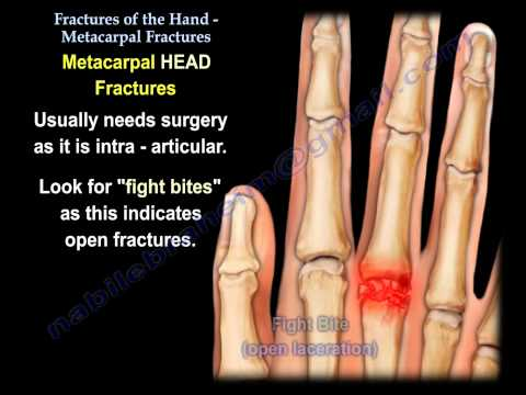 Metacarpal Fractures - Everything You Need To Know - Dr. Nabil Ebraheim