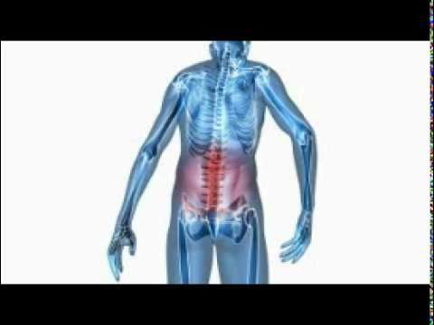 How To Dissolve Kidney Stones