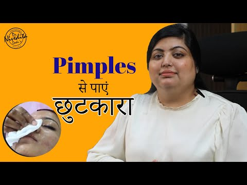 How to get rid of acne?  Best Skin and Laser Clinic| Dr. Nivedita Dadu's Dermatology Clinic