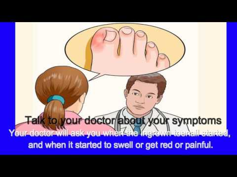 How to Relieve Ingrown Toe Nail Pain | Diagnosing an Ingrown Toenail