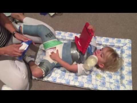 Spica cast nappy diaper tips