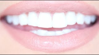 How To Get Really White Teeth For Cheap Kandee Johnson