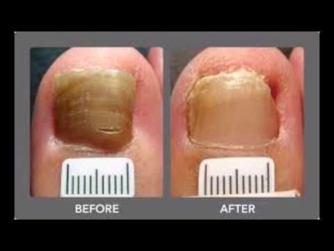 How To Get Rid Of Toenail Fungus In Two Weeks - Eating Coconut Oil For Nail Fungus