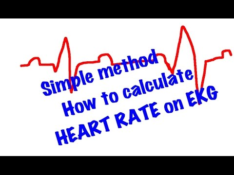 EKG/ECG made simple & Easy: How to calculate Heart Rate very easy method