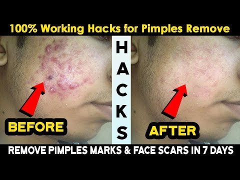 Remove Pimples Marks and Face Scars Permanently in 7 days