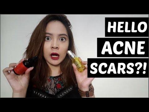 HOW I WORSENED MY ACNE SCARS | Tish Ortz