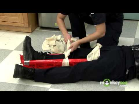 How to Splint a Broken Leg or Ankle
