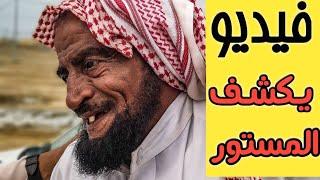 فيديو يكشف حقيقة تحرش نجم سناب شاب علي بن كرمان بممرضة فى السعودية