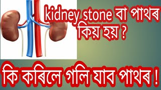 Kidney stone | assamese health tips | assamese health care | health tips | daily tips Assamese