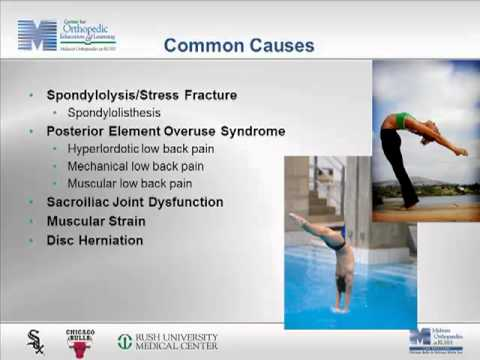 @MOR_Docs 2013 Sports Medicine Summit -  Sprains, Strains, & Low Back Pains - Dr. Blomgren