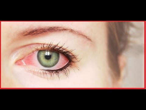 THE Best Remedies For EYE INFECTION - Natural working 100%