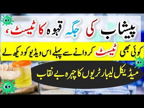 Laboratory Services | Medical Laboratory Tests ~ main Peshab Ki Jaga Qehway Ka Test | Health Tips