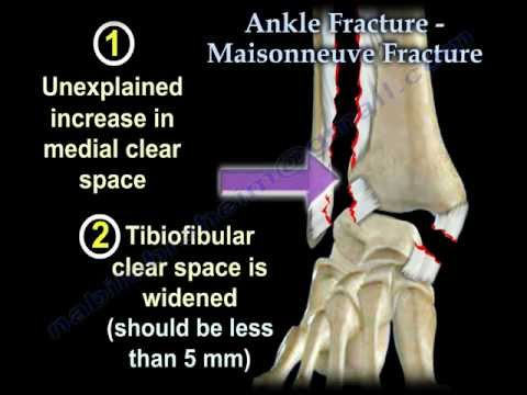 Ankle Fracture Maisonneuve Fracture - Everything You Need To Know - Dr. Nabil Ebraheim