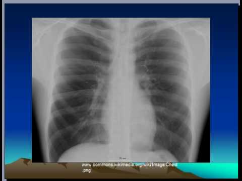 Chest xray, Respiratory system,  Pneumonia, consolidation