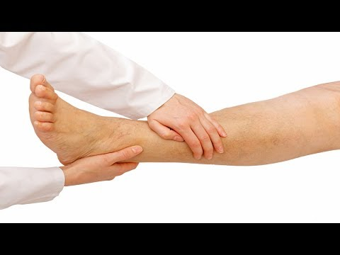 Natural Best Home Remedy For Swollen Legs | Cure Swollen Legs fast