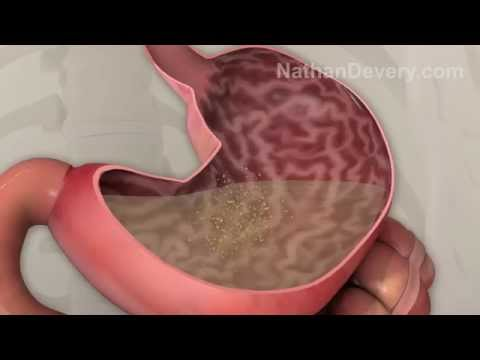 What is irritable bowel syndrome? IBS explained.