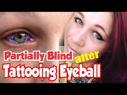 5 Things About Catt Gallinger, Partially Blind After Tattooing of the Eyeball
