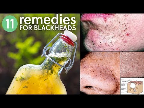 11 Simple Remedies to Get Rid of Blackheads fast at home