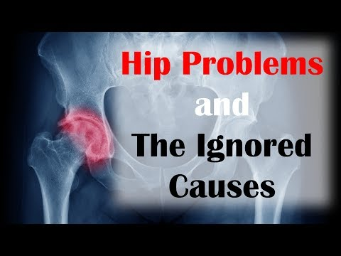 Hip Problems and the Ignored Causes