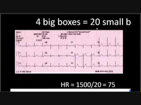 calculating heart rate in ecg