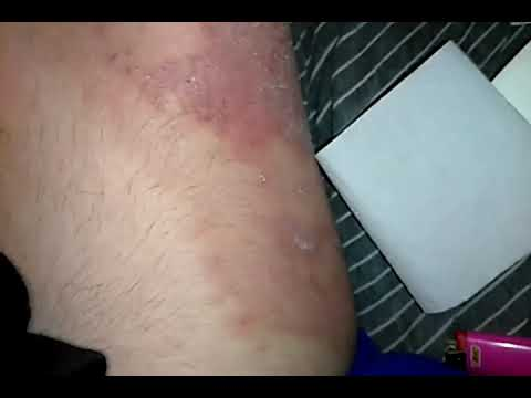 Health Update. WARNING GRAPHIC VIDEO! NOT FOR THE QUEASY!