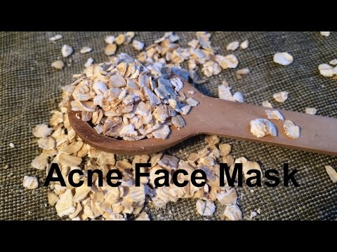 DIY How To Get Rid Of Acne FAST | Oatmeal for Acne, Scars, Uneven Skintone