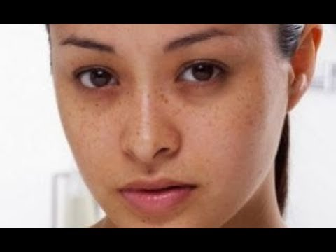 How to Remove Dark Circles Under Eyes at Home | How to Remove Dark Circles Under Eyes Permanently