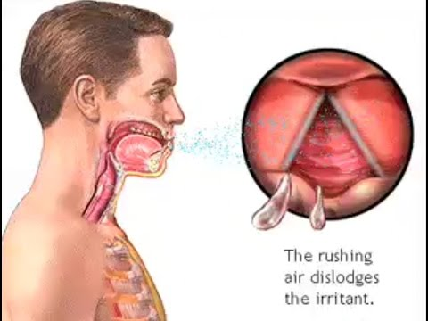 How Do We Cough? - The Mechanism of Coughing - Cough Reflex Animation - Learn Human Body