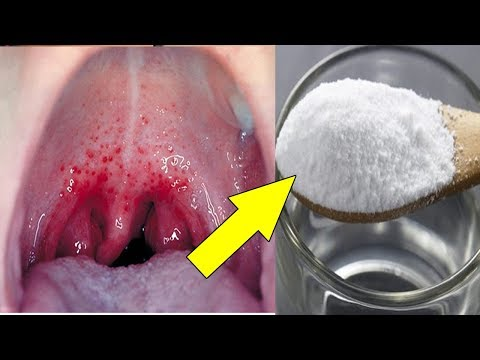 How To Get Rid of Sore Throat fast| 9 Natural Remedies for Sore Throat