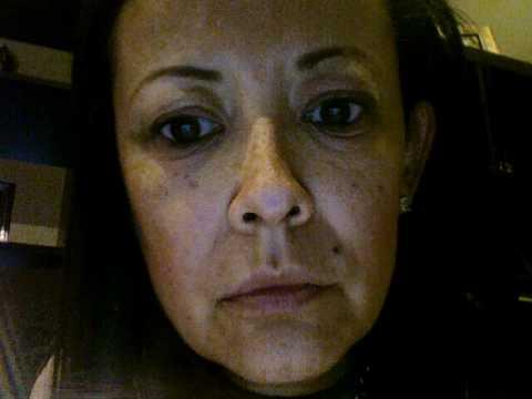 Eczema around eyes driving me crazy