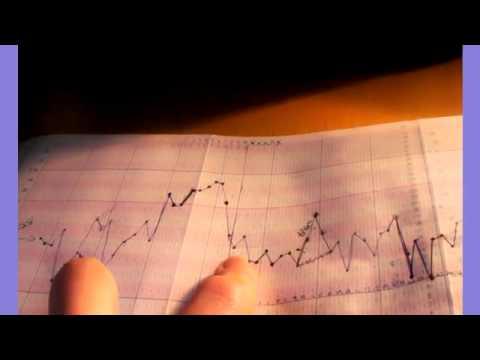 Charting Basal Body Temperature