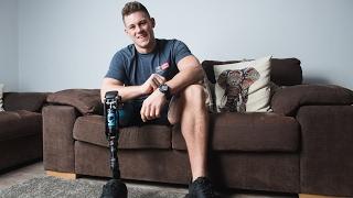 One-Legged Model Becomes Catwalk Star