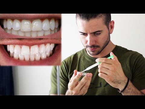 HOW TO WHITEN YOUR TEETH AT HOME | ALEX COSTA