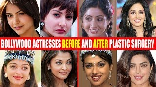 SHOCKING Plastic Surgery of Bollywood Actresses BEFORE & AFTER | Sridevi,Anushka,Aishwarya,Priyanka