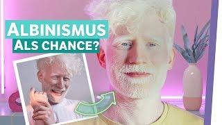 Was wäre, wenn ich keinen Albinismus hätte?