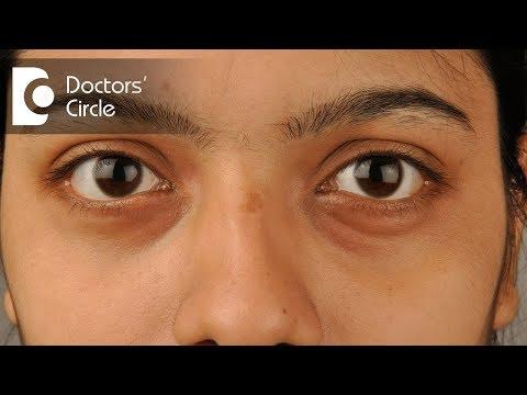 How to get rid of dark circles and hollow eyes? - Dr. Deepak P Devakar